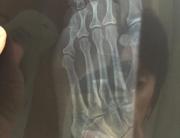 Broken left toe